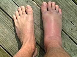 ankle sprain photo