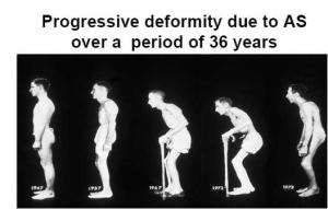 anklylosing_spondylitis progression