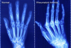 x-ray_of_rheumatoid_arthritis